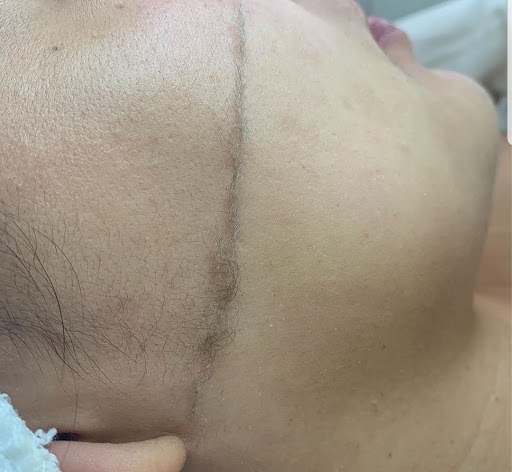 DERMAPLANING   Dermaplane Facial   Exfoliation