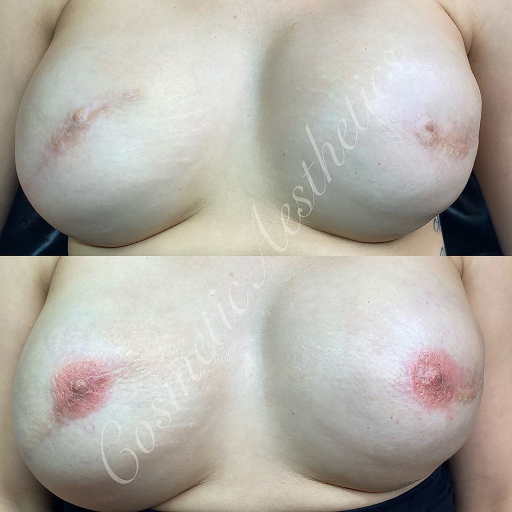 Areola Tattooing and Repigmentation