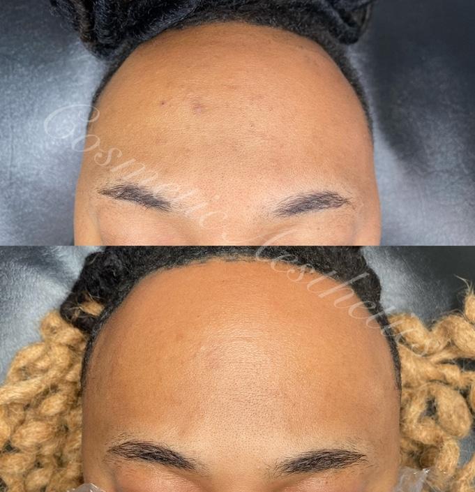 MICROCHANNELING Acne Scar Treatment